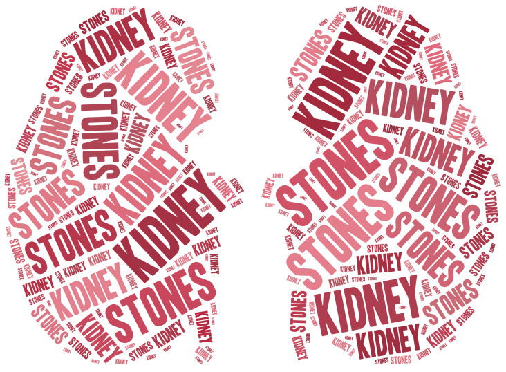 Kidney Doctor Jupiter FL - Learn more about symptoms of kidney stones, what causes kidney stones, and more